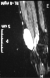 Magnetic resonance image of intraneural hemangioma. (A) Sagittal T1 (B) T2 (C) axial T1 and (D) T2 (E) fat suppression images demonstrating an 3 × 2 × 1.5 cm lesion in the volar aspect of the right wrist.