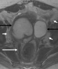 MRI axial T2W images of the pelvis. Bilateral adnexal cystic masses are demonstrated (black arrows). The cyst wall on the right side is thick and irregular. There is marked thickening of the mesorectal fascia (long white arrow). Multiple prominent nodes are demonstrated along the pelvic sidewalls, which are very high in signal intensity on T2W (short white arrows).
