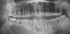 Panoramic radiograph shows multilocular radiolucent lesion in the right body of the mandible crossing midline with involved teeth showing root resorption.