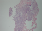 Dense inflammatory infiltrate around the ulcer base (HE�40).