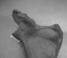 Anterior long neck glenoid.