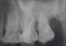 Intraoral peri-apical radiograph showing completion of endodontic therapy in maxillary right second molar (17)