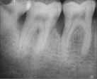 Radiograph showing infrabony defects distal to 46 and 47