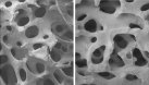 Scanning electron micrographs of Pro Osteon 200 hydroxyapatite as used in augmentation of the facial skeleton (left) and the similar physical structure of human cancellous bone (right) (images courtesy of Interpore Cross International: reproduced with permission)