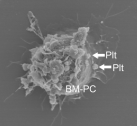 Bone marrow�derived progenitor cells (BM-PC) bind directly to platelets (Plt) at sites of blood vessel injury.