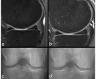 Example of non-sensitivity of radiography. (a) Baseline sagittal intermediate-weighted fat-suppressed image shows normal articular cartilage coverage in the medial femur and tibia. (b) At 24-month follow-up, there is circumscribed thinning of cartilage in the posterior medial femur (arrows). (c) Baseline radiograph does not show any abnormalities in regard to joint space width or any definite osteophytes at the medial tibia (no arrow). (d) At 24-month follow-up, no change is observed in comparison with the baseline image.