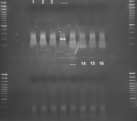 Original agarose gel photograph obtained from second amplification step of VIDISCA. Numbering of the 16 second-stage PCR products is shown above the first and last three lanes. The product in lane 4 was sequenced and showed a parechovirus as described in the text. A 100 bp marker is used on the gel (500 bp band enhanced, 400, 300, 200, 100 bp).