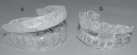 Mandibular advancement splints showing both adjustable appliance (a) which uses a hinge to adjust mandibular advancement or one-piece mono-block appliance (b) with fixed mandibular advancement.