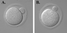 Differential interference contrast micrographs of (A) cultured wild-type egg and (B) α6 knockout egg.