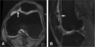 MRI findings suggestive of CADASIL in carriers of rare   Open-i