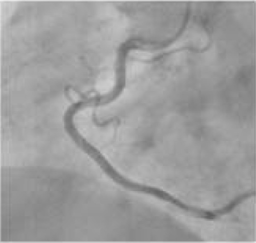 Coronary angiography showing normal right coronary artery.