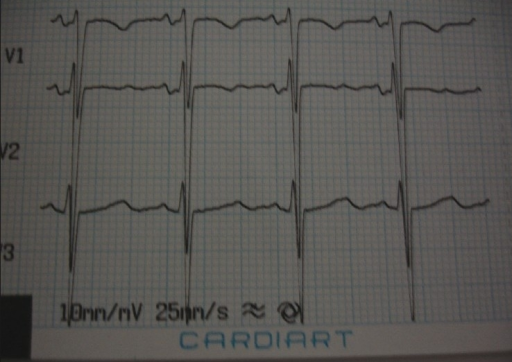 Electrocardiogram of the patient revealing U-waves suggestive of hypokalemia