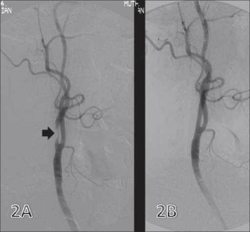 Internal carotid artery (ICA) stenosis. Preintervention image (A) shows a short segment stenosis (arrow) in the proximal ICA. Post-stenting image (B) shows good flow through the diseased segment