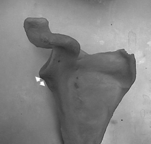 Anterior short neck glenoid.