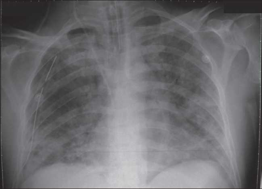X-ray showed bilateral diffuse infiltrates