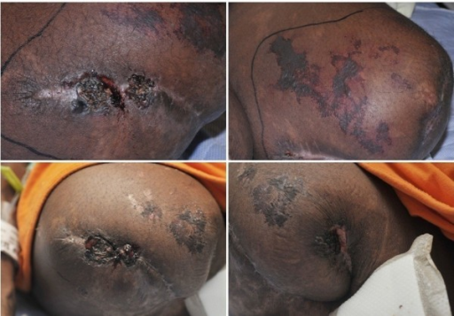 Recurrent purpuric and necrotic lesions on the amputation stumps with repeat use of cocaine.