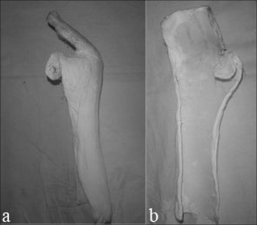 Photographs (a, b) showing the self made plaster of paris Splint