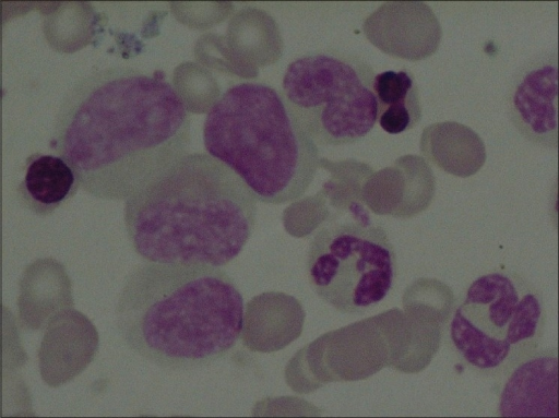 Bone marrow aspirate cytology showing spectrum of myeloid maturation