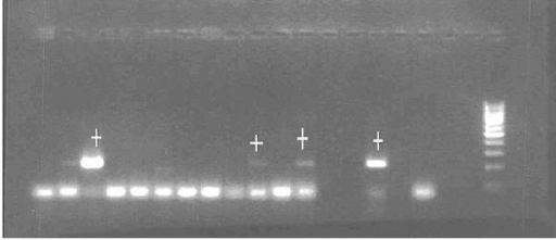 Fragments obtained from DNA amplification by PCR. Lines with the mark (+) correspond to positive amplifications of P. falciparum parasites from salivary glands. The last fragments to the right correspond to positive and negative controls.