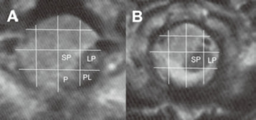 Schemes of spinal cord compression and displacement according to axial MRI sections of the tumor at C1 � C2 level. A � Axial MRI at C1 level (spinal cord displaced to LP, PL, P sectors), B � Axial MRI at C2 level (spinal cord displaced to LP, SP sectors).