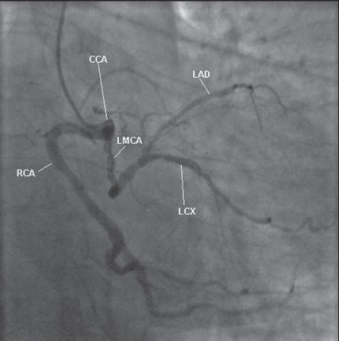 Right anterior oblique view of the common coronary artery and its branches with critical disease in the proximal LM artery.