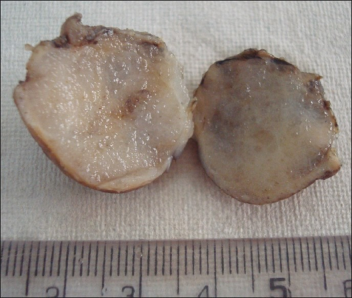 Gross specimen revealing a spherical, well-circumscribed tumor with a gelatinous cut surface.