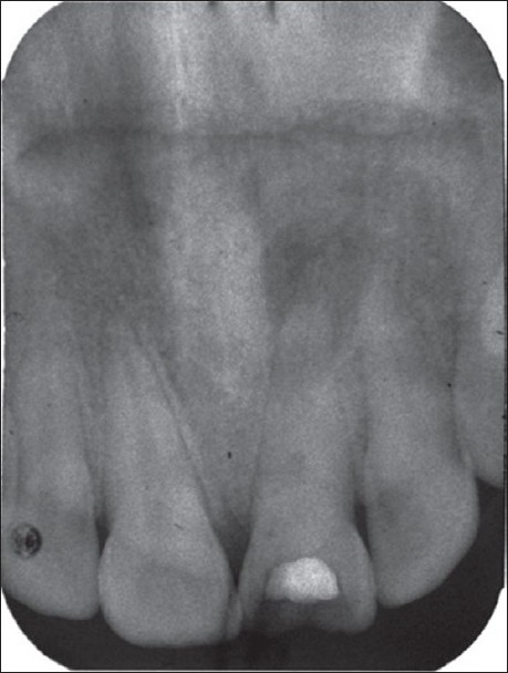 Radiograph of 21 (tooth no. 9) revealing an incomplete endodontic procedure with calcium hydroxide powder dressing and deteriorated interim restoration of the access cavity
