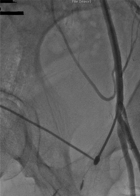 Pre-procedure angiogram showing patent superficial femoral artery.