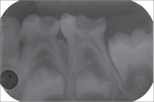 Pre-operative radiograph for formocresol pulpotomy (Group b)