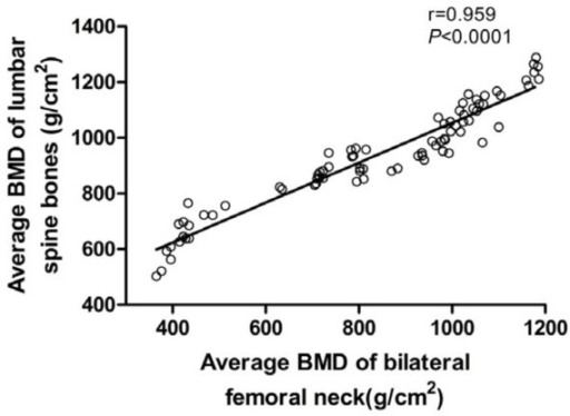 Relationship between the average BMD of lumbar spine bones and bilateral femoral necks. The average BMD of femoral neck showed a good correlation with lumbar vertebra (Average BMD of lumbar spine bones = 0.718 � Average BMD of bilateral femoral necks +336.46;r = 0.959; p < 0.0001).