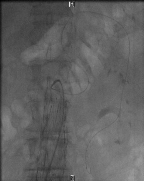 Cannulation of the marginal artery of drummond with a hydrophilic guidewire towards the origin of the IMA.