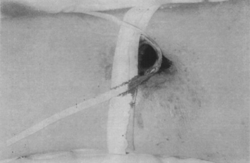 Glass tube to maintain surface opening of wound, held in place by adhesive.