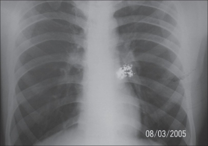 Patient - 2 mercury deposit in anterior chest wall