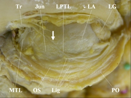 Modified course of the lower-positioned transverse ligament (LPTL) (top: superior; left: medial). Reprinted with permission of the Japanese Journal of Ophthalmology (Kakizaki H, et al. Posterior aspect of the orbital septum is reinforced by ligaments. Jpn J Ophthalmol 2005; 49: 477-80). The LPTL originates from the trochlea and runs in an inferolateral direction. The LPTL passes over the junction between the orbital septum and levator aponeurosis, attaches onto the posterior aspect of the orbital septum, and runs towards the lateral orbital rim. The LPTL was harvested in the part that the arrow indicates. Tr, trochlea; Jun, junction of the orbital septum and the levator aponeurosis; LA, levator aponeurosis; LG, lacrimal gland; MTL, medial horn tensing ligament; OS, orbital septum; Lig, ligaments on the posterior aspect of the orbital septum; PO, periosteum.