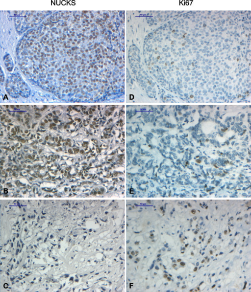 Immunohistochemical staining of DCIS and IDC with anti-NUCKS and anti-ki67 antibody. Tissue sections stained with anti-NUCKS (A-C) and corresponding sections stained with anti-ki67 (D-F) antibody. (A), (D), Strong immunoreaction for NUCKS and low for Ki67 in DCIS. (B), (E) Strong immunoreaction for NUCKS and low for Ki67 in IDC, grade II. (C), (F) IDC, grade III negative staining for NUCKS and strong staining for Ki67. Scale bar, 50 μm.