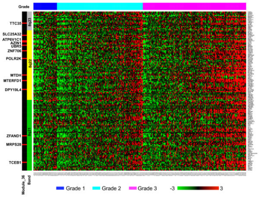 Expression profile of genes in the chromosome region 8q21-23. Expression data for genes in the chromosome region 8q21-23 were collected from the GSE2109 dataset and visualized in a heat map. Rows present genes and columns represent samples. Genes are ordered by their chromosome location and colored-coded on the left by three cytogenetic bands 8q21, 8q22, and 8q23. Genes in module_36 are marked in red and labeled on the left. Samples are color-coded on the top by tumor grade, where blue, cyan, and pink correspond to grades 1, 2, and 3, respectively. The color scale bar at the bottom shows the relative gene expression level (0 is the mean expression level of a given gene).