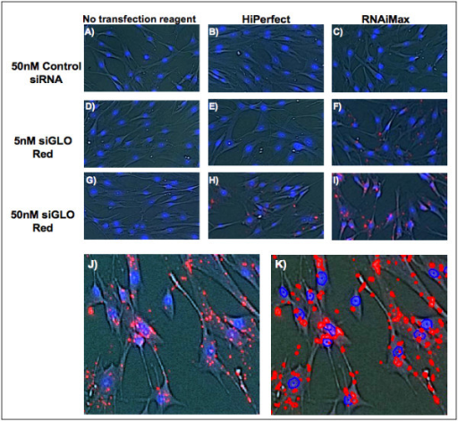 Comparison of transfection reagents in siGLO Red transfected AoSMCs. (A, D, and G) No transfection reagent with 50 nM control siRNA, 5 nM siGLO Red and 50 nM siGLO Red respectively. (B, E, and H) HiPerfect transfection reagent (0.375 μl/100 μl) with 50 nM control siRNA, 5 nM siGLO Red and 50 nM siGLO Red respectively. (C, F, and I) RNAiMax transfection reagent (0.375 μl/100 μl) with 50 nM control siRNA, 5 nM siGLO Red and 50 nM siGLO Red respectively. (J) Representativepicture of 50 nM siGLO Red + RNAiMax transfected AoSMCs used for quantification. AoSMCs were also stained with Hoechst nuclei stain. Both fluorescent signals were confined within the cells. (K) Represents Figure 4J with the gated fluorescent events (red dots/circles = siGLO Red; blue circles = Hoechst stained nuclei). Note the exact overlay of actual and detected fluorescent events. The vast majority of gated signals originated from the AoSMCs.