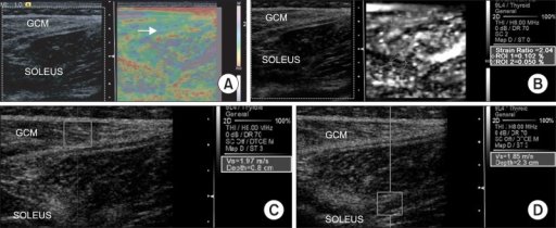 Sonoelastographic image presentation of local muscle stiffness superimposed on the longitudinal B-mode ultrasound image of the right medial gastrocnemius (GCM) muscle at 4 weeks intensive rehabilitation treatment with BTX-A injection. (A) Sonoelastographic image (right) showed purple to green coloring (arrow). (B) Strain ratio between gastrocnemius and soleus muscles demonstrated 2.04. (C, D) Shear velocity in the medial GCM muscle and soleus muscle region revealed 1.97 m/s and 1.85 m/s, respectively.