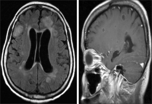 Brain magnetic resonance imaging (MRI) findings. Brain MRI revealed numerous peripheral thin enhancing cystic nodules in right and left cerebral hemispheres.