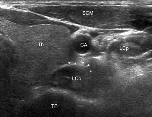 ultrasonography imaging of the left stellate ganglion