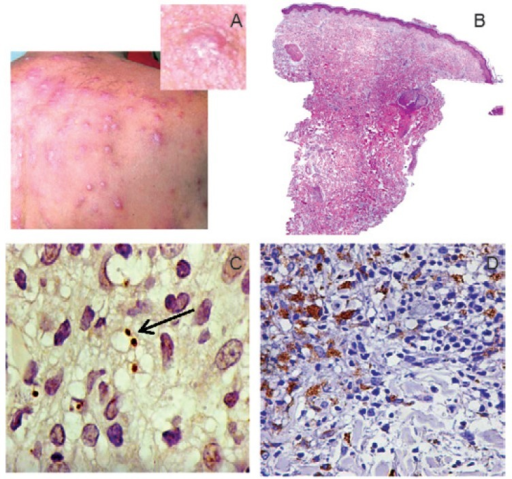 clinical characteristics of patient diagnosed with disseminat ed leishmaniasis due to Leishmania braziliensis dissemination. The insert shows a detail of a typical non-ulcerated lesion; B: haematoxy lin and eosin (HE) stained section of a non-ulcerated lesion biopsy with 3% of inflammation; C: immunostained Leishmania amastigotes (1,000X) (arrow); D: immunostained CD68+ macrophages (400X).