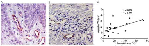 immunostained CD31+ small vessels (400X); B: immunostained von Willebrand factor (vW) positive in the dermis (400X); C: linear correlation of Pearson between vW+ vessels and inflammation in the 18 non-ulcerated lesions.