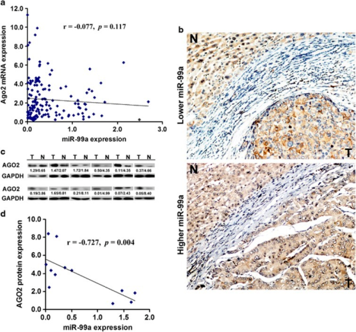 Ago2 is upregulated in HCC and negatively correlated with miR-99a. (a) The correlation between relative expression of miR-99a and Ago2 mRNA in HCC tissues as determined by qRT–PCR. (b) Increased AGO2 protein as analyzed by immunohistochemistry in cancerous tissues. The patient serial number was 30 and 6, respectively. (c) Increased AGO2 protein as detected by western blotting. Expression ratio was calculated by normalizing AGO2 to total protein levels in each case. The value of relative expression of miR-99a/AGO2 protein is shown below. The patient serial number was 6, 8, 9, 11, 30, 41, 53, 68, 73, 90, 121, and 132, respectively. N, matched noncancerous control; T, HCC tissue. (d) The correlation between expression of miR-99a and AGO2 protein in 12 pairs of HCC samples mentioned above.