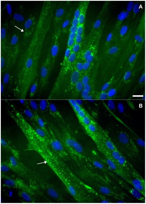 Distribution of flotillin-2 in human neonatal muscle cells.Human neonatal muscle cells were grown as described in Materials and Methods section. Cells were fixed with methanol and stained with an anti-flotillin-2 antibody (green, A and B) and the nuclear dye DAPI (blue, A and B). Merged images are shown in A and B. Note that flotillin-2 is present in human myoblasts and myotubes in vesicle-like structures (arrows in A and B). Scale bar in A represents 10 µm.