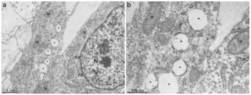 Transmission electron microscopy of chick fibroblastic cells.Chick myogenic cells were grown for 48(asterisks), well-preserved mitochondria (M), as well as several endoplasmic reticulum membranous profiles (ER) and a nucleus (N). Image shown in b is a higher magnification of a region of the image shown in a. Scale bar in a represents 1 µm and in b represents 500 µm.