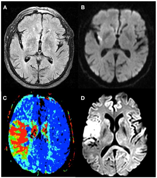 The different imaging techniques used to select stroke-patients who would benefit from therapy. Patient 1 exhibits no FLAIR-lesion (A) and a clear DWI-lesion (B), the so-called DWI-FLAIR mismatch pattern. Patient 2 has a PWI/DWI mismatch on imaging, with (C) representing the lesion on Tmax, and (D) the corresponding diffusion lesion.