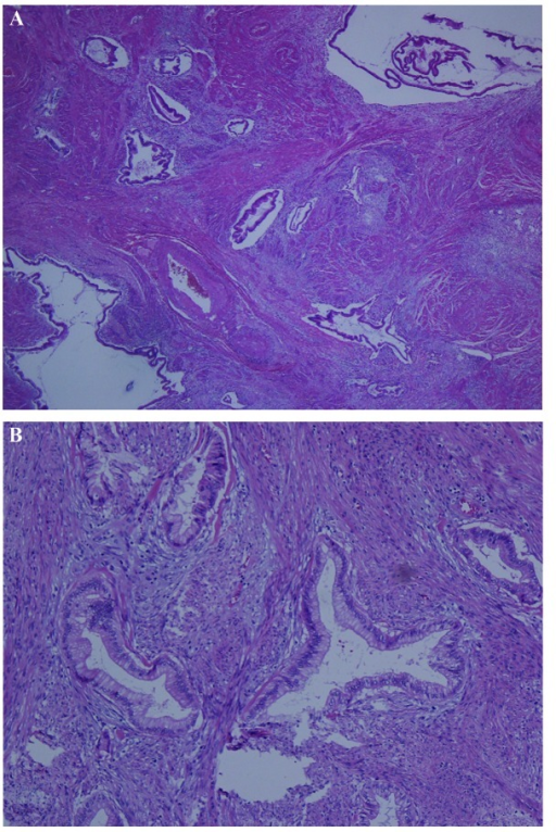 (A) Low-power and (B) high-power view of the multicystic lesions that resemble normal endocervical glands. The majority of glands had an irregular shape, cellular atypia and structural dysplasia. Branching-shaped endocervical glands infiltrated deep into the muscle [magnification, (A) ×100 and (B) ×200.