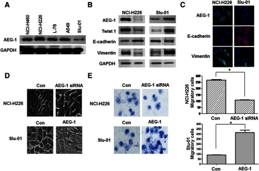 Lung cancer cell lines showed different AEG-1 expression characteristics and AEG-1 promoted the EMT process. (A) AEG-1 protein expression levels in lung cancer cell lines. NCI-H226 cells expressed a high level of AEG-1; NCl-H460, L-78, A549 and Slu-1 cells expressed a low level of AEG-1. (B) The expression spectrum of mesenchymal and epithelial markers in AEG-1-knockdown cells and pcDNA3.1-AEG-1-transfected cells was analyzed by using the Western blotting method. GAPDH served as a control. (C) Immunofluorescence staining of AEG-1, E-cadherin and Vimentin in NCI-H226 and Slu-01 cell lines (magnification × 100). (D) Knockdown of AEG-1 reversed EMT in vitro. Morphology of NCl-H226 cells transfected with AEG-1 siRNA was observed through phase-contrast microscopy (magnification × 100). Up-regulation of AEG-1 initiated EMT in vitro. Slu-01 cells were transfected with pcDNA3.1-AEG-1 and the morphology was observed through phase-contrast microscopy (magnification × 100). (E) The effect of AEG-1 expression changes on invasion ability. NCI-H226 cells were transfected with AEG-1 siRNA, and Slu-01 cells were transfected with pcDNA3.1-AEG-1. The data represent the mean ± SD of three independent experiments (asterisk; p < 0.01).
