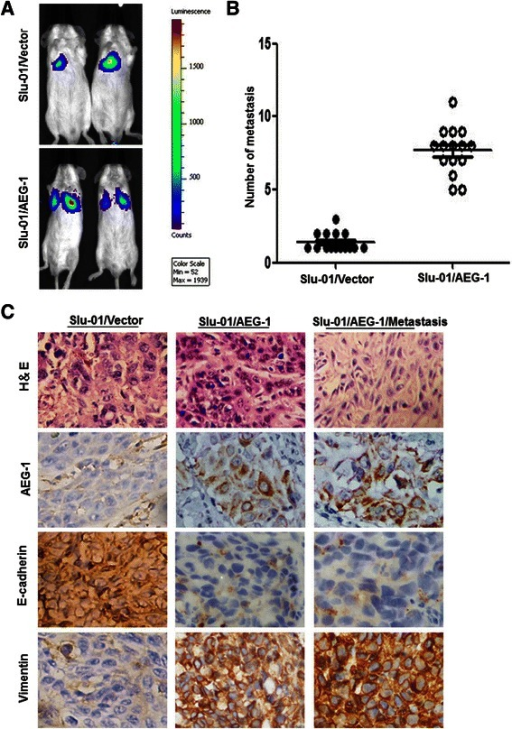 AEG-1 promoted tumor metastasis in vivo. (A) Representative BLI images of mice bearing Slu-01/AEG-1-expressing tumors with metastatic lesions. Mice (n = 15) were imaged six weeks later to determine local tumor growth and metastasis. (B) Number of metastatic nodules or distant metastasis in individual dead mouse bearing con or Slu-01/AEG-1-expressing tumors. (C) AEG-1 overexpression in Slu-01 cells promoted EMT in athymic nude mice in vivo. H&E staining showed primary tumors without detectable metastasis in control mice and the lymph node metastases in mice bearing Slu-01/AEG-1-expressing tumors two weeks after injection (magnification, ×200). IHC showed that up-regulation of AEG-1 resulted in an increased in the expression of Vimentin and weak E-cadherin staining (magnification × 200).
