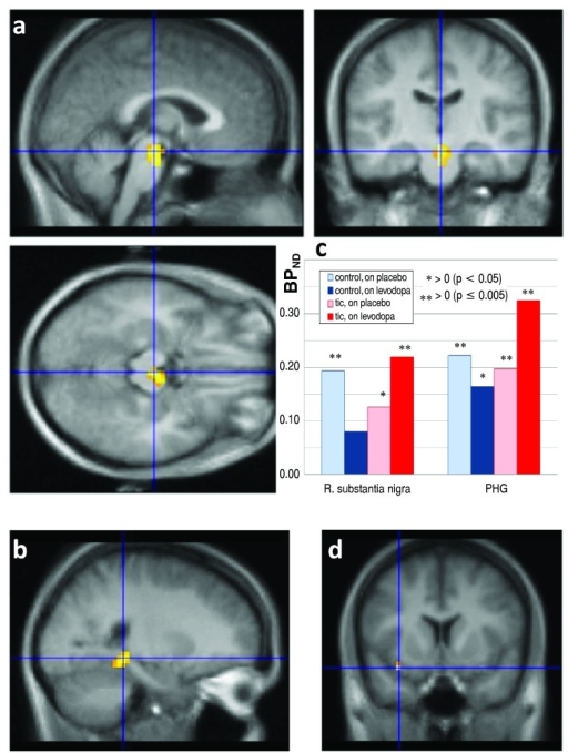 RAC* binding on levodopa vs. placebo, by diagnosis.Differences in the RAC* binding response to levodopa between TS and control subjects, thresholded at uncorrectedp = 0.001, in color, laid over the MRI template image in grayscale.a,b: Significant clusters, with blue lines crossing at the peakt value in midbrain (a, three views) and in parahippocampal gyrus (b). A third statistically significant cluster was centered at the posterior edge of the occipital lobe, but both the location and the observation that in this cluster the BPND on placebo was negative in half the subjects suggests that this cluster likely does not reflect specific binding.c: Levodopa-induced change in BPND, TS vs. control, in the clusters shown in A and B. R., Right; PHG, parahippocampal gyrus. Asterisks indicate that mean BPND differs significantly from zero.d: The blue lines cross at the voxel with the highest t value in the whole-brain SPM analysis of levodopa effect ΔDVR images (t=11.62, 8 df).